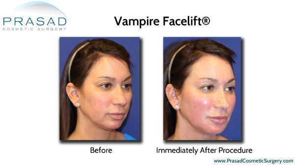 Vampire Facelift Before & After