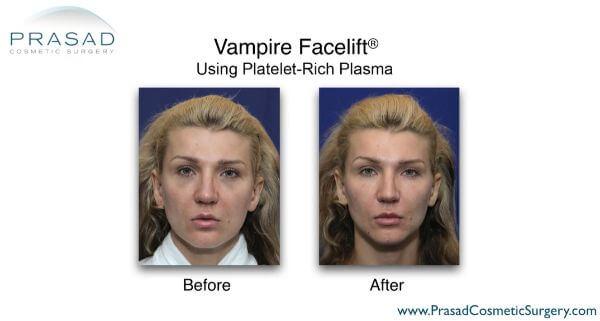 Vampire Facelift Results